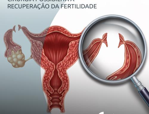 Reversão da laqueadura cirurgia possibilita a recuperação da fertilidade