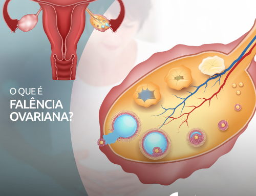 O que é falência ovariana?