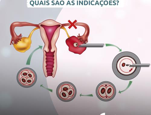 Fertilização in vitro (FIV): Quais são as indicações?